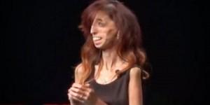 """Mensaje de la """"Mujer más fea del mundo"""" que impactó en TED"""